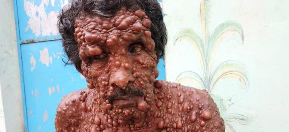 Recouvert de tumeurs, cet indien vit un véritable enfer [PHOTO]