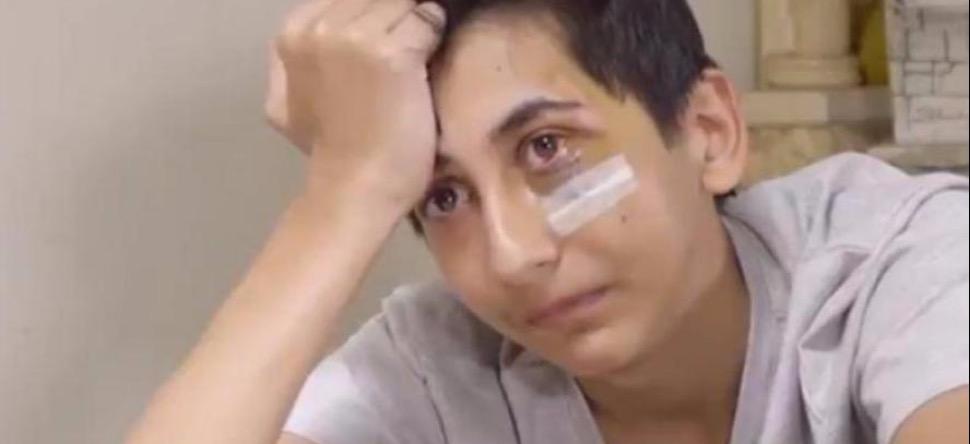 Violences policières : le témoignage d'un ado de 14 ans, défiguré...