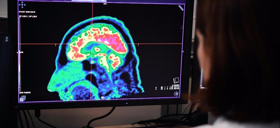 Covid-19 : les répercussions sur le cerveau seraient terribles?